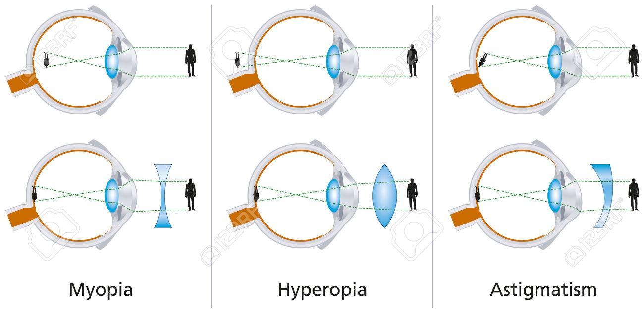 myopia és hyperopia fiziológia)