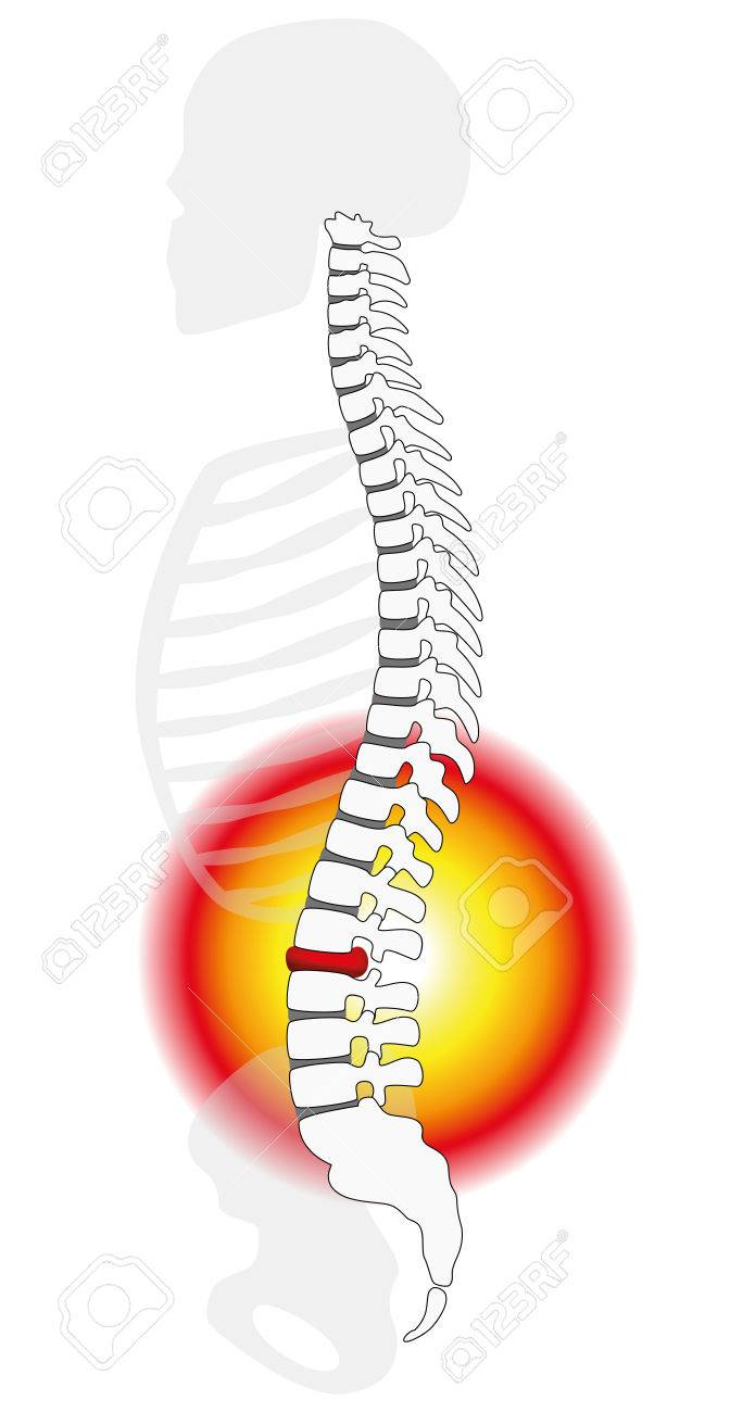Spinal disc herniation or prolapse at a human vertebral column - profile view. Isolated vector illustration on white background. Standard-Bild - 45354398