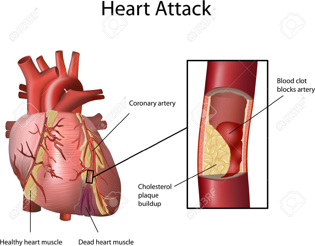 Heart attack cholesterol plaque built up in artery atherosclerosis heart attack cholesterol plaque built up in artery atherosclerosis illustration with annotation ccuart Images