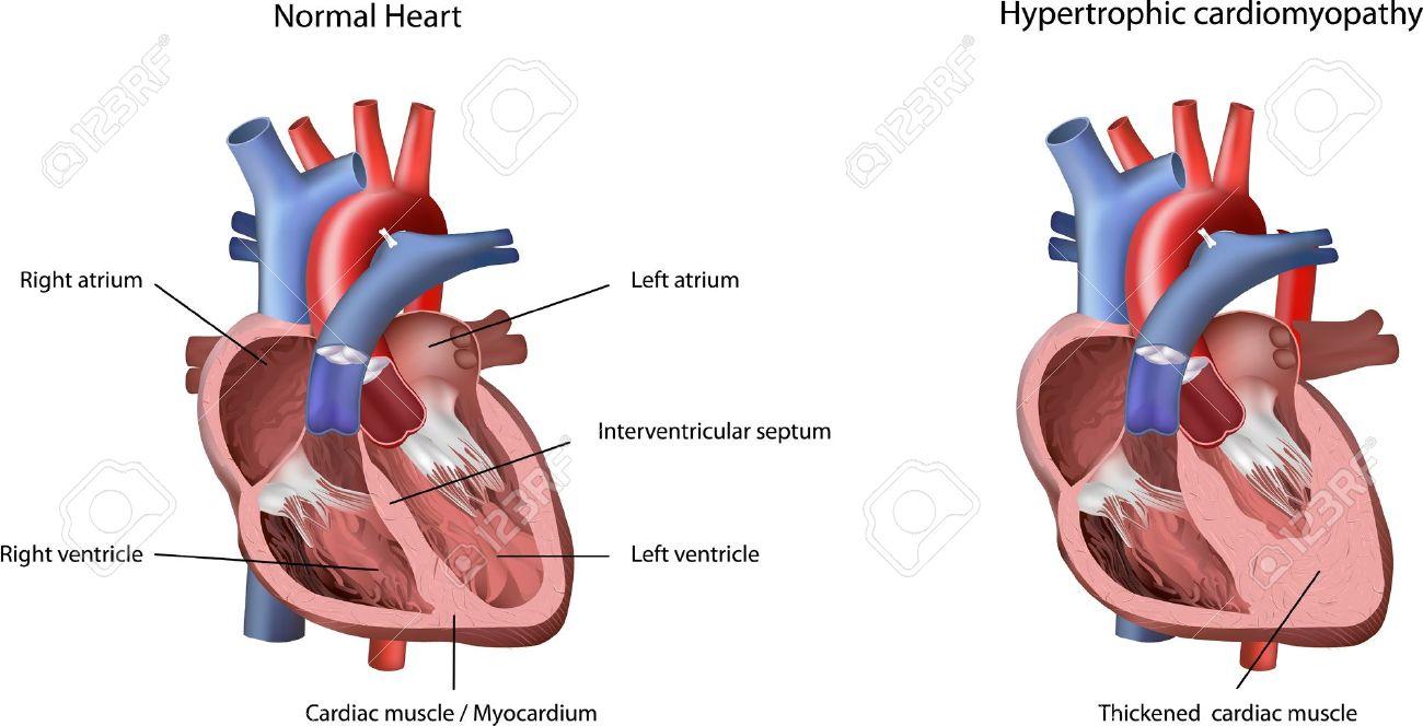 Heart Problem Hypertrophic Cardiomyopathy Illustration. The Heart ...