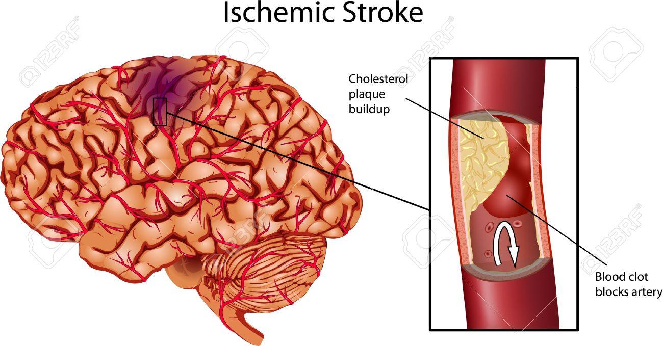Brain Stroke . A illustration of Ischemic Stroke. Stock Vector - 13699566