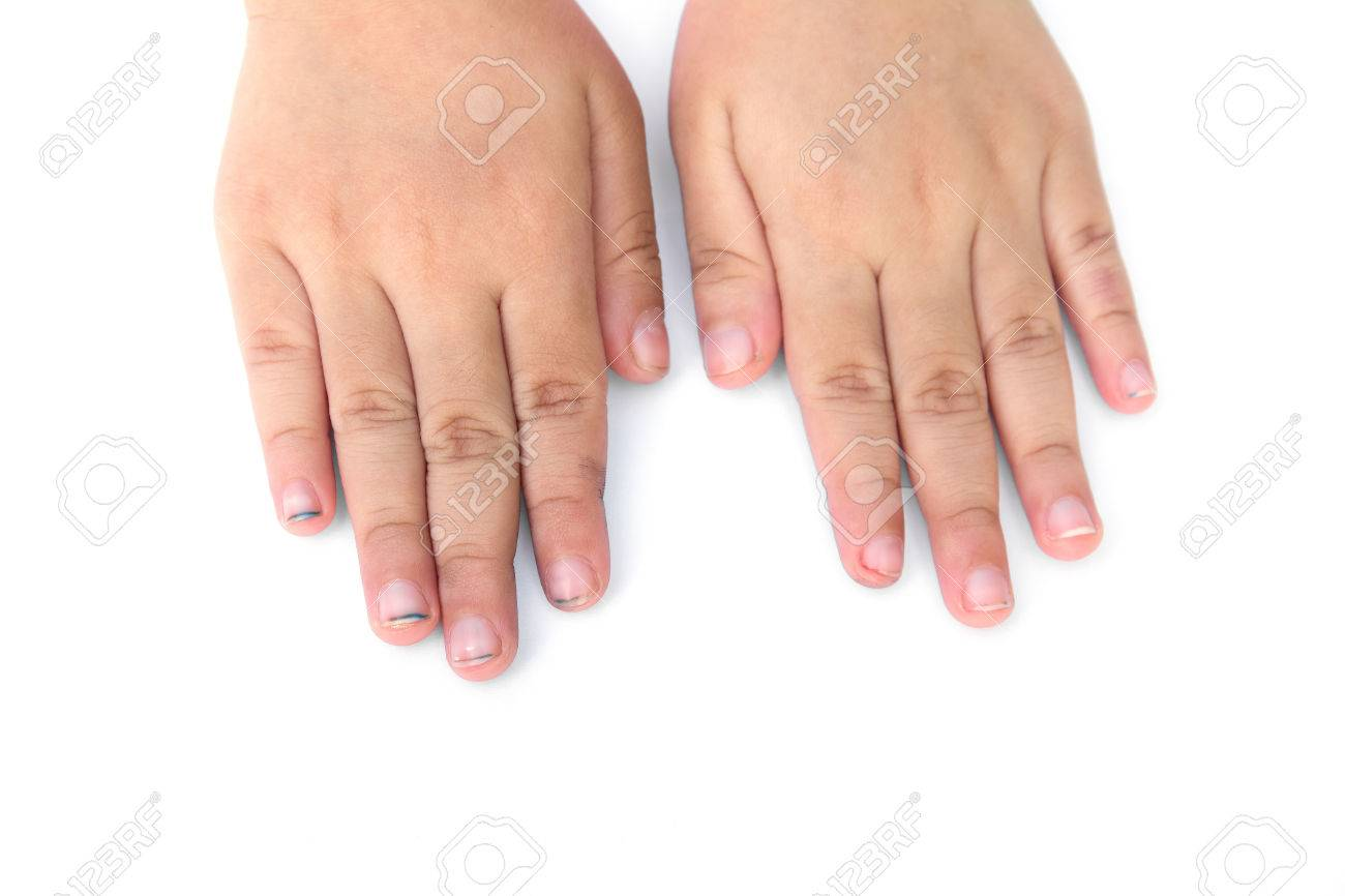 Children Long Nails Isolated On White Background.Children Dirty ...