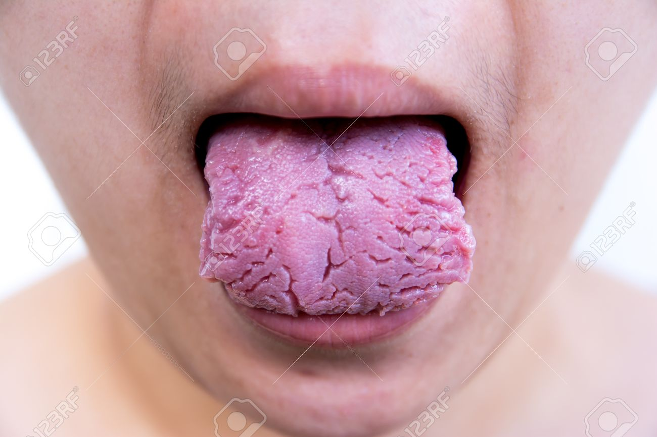 maladie de la langue