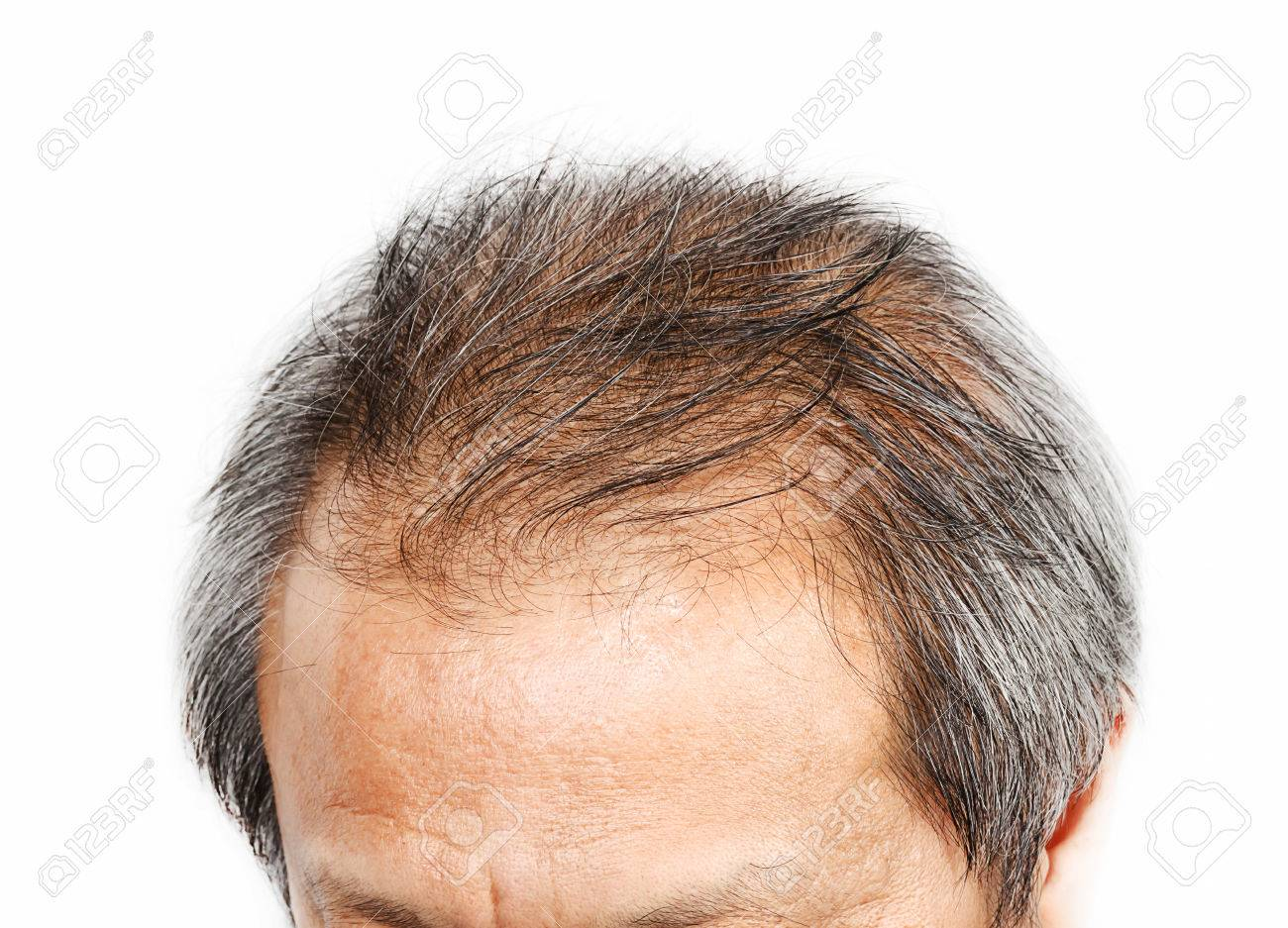Male head with hair loss symptoms front side - 33223801