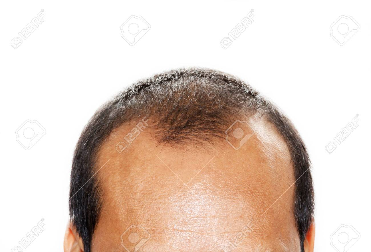 Male head with hair loss symptoms front side - 33224692