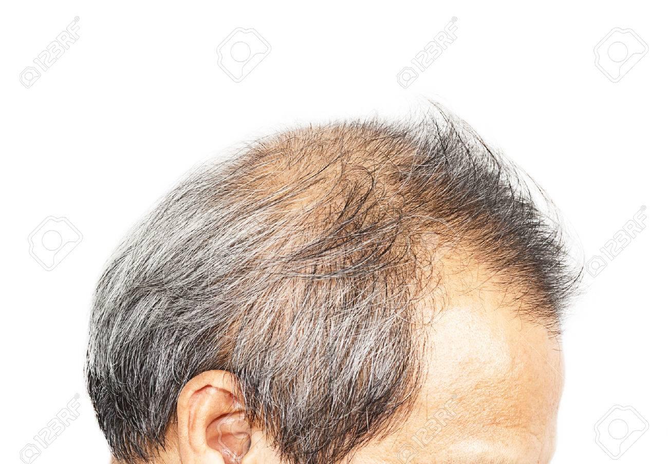 Hair loss - 33921530