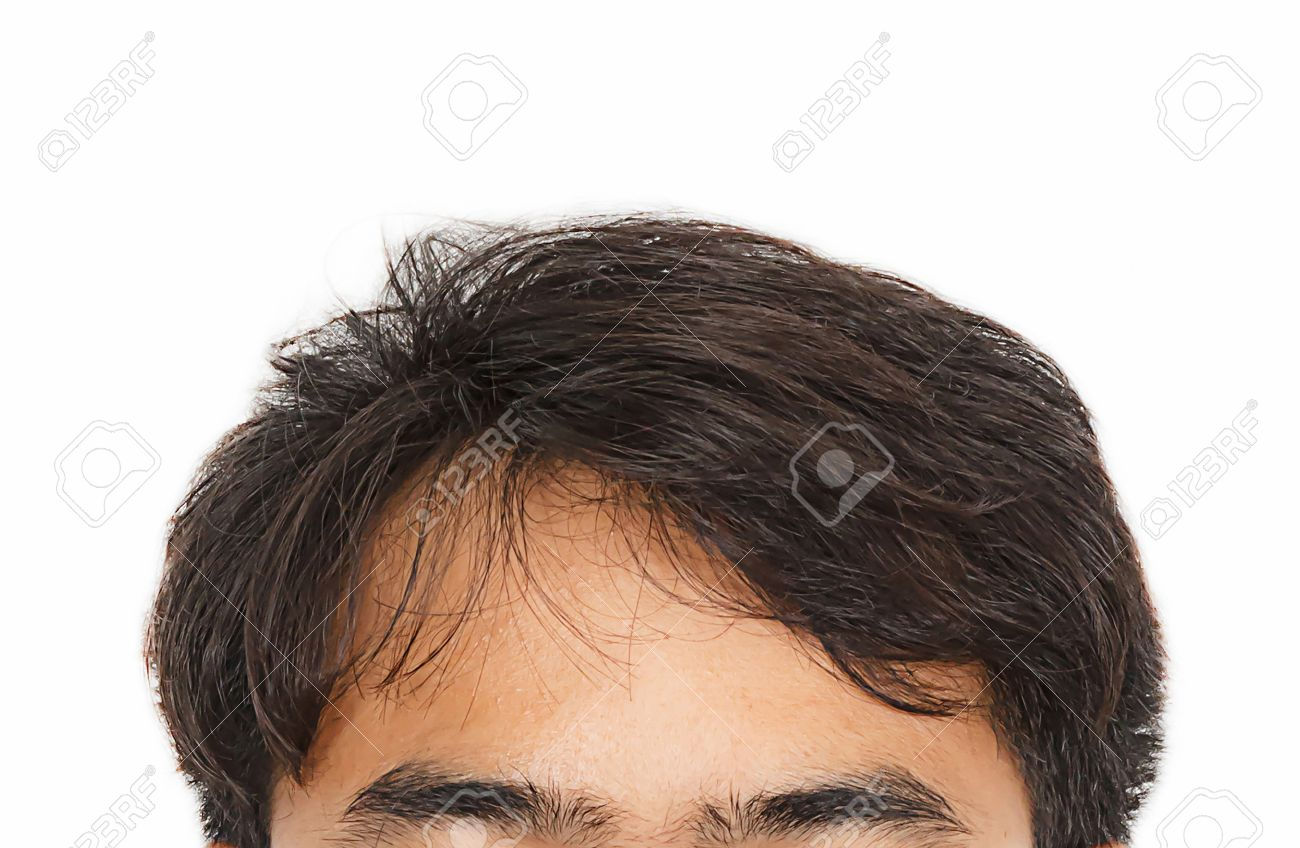 hair loss, Male head with hair loss symptoms front side - 38725717