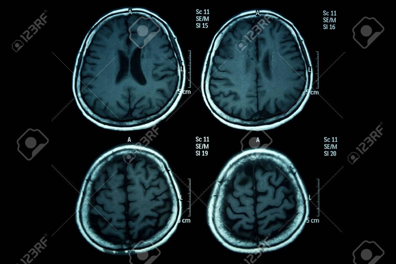 Röntgenbild Des Gehirns Computertomographie Lizenzfreie Fotos ...