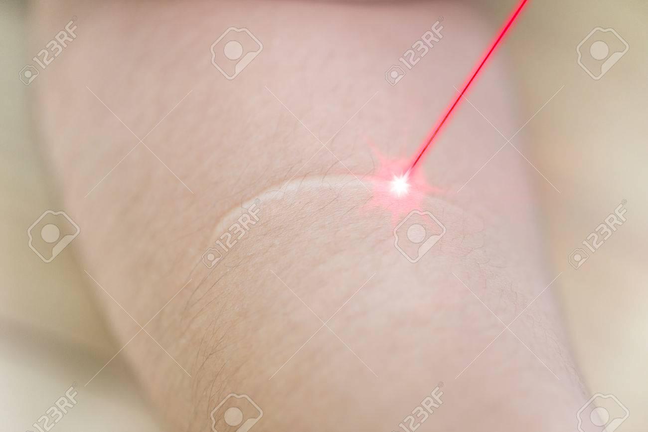 laser litteken