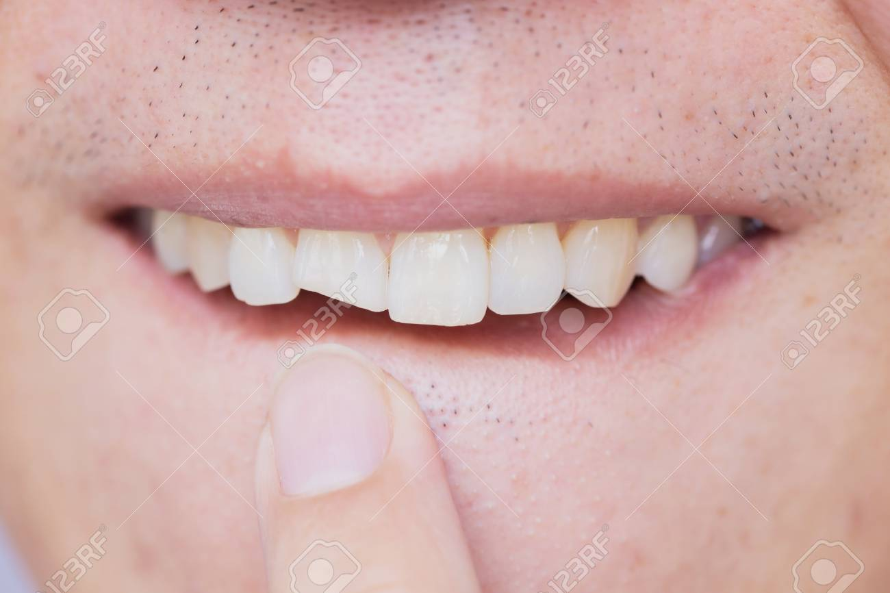 Male broken teeth damaged cracked front tooth need dentist to fix and repair. - 101341930