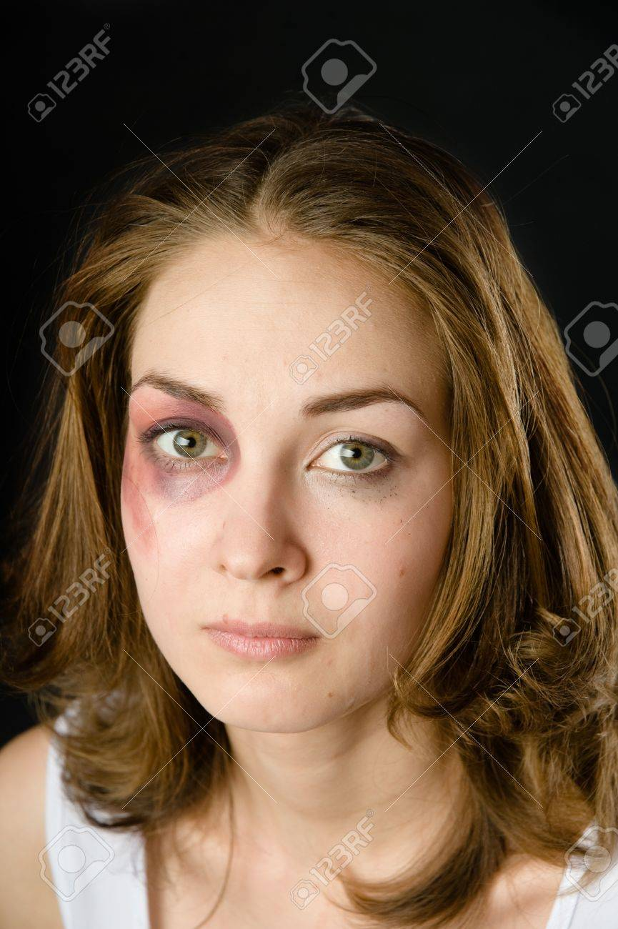 woman victim of domestic violence and abuse  on dark background Stock Photo - 21046104