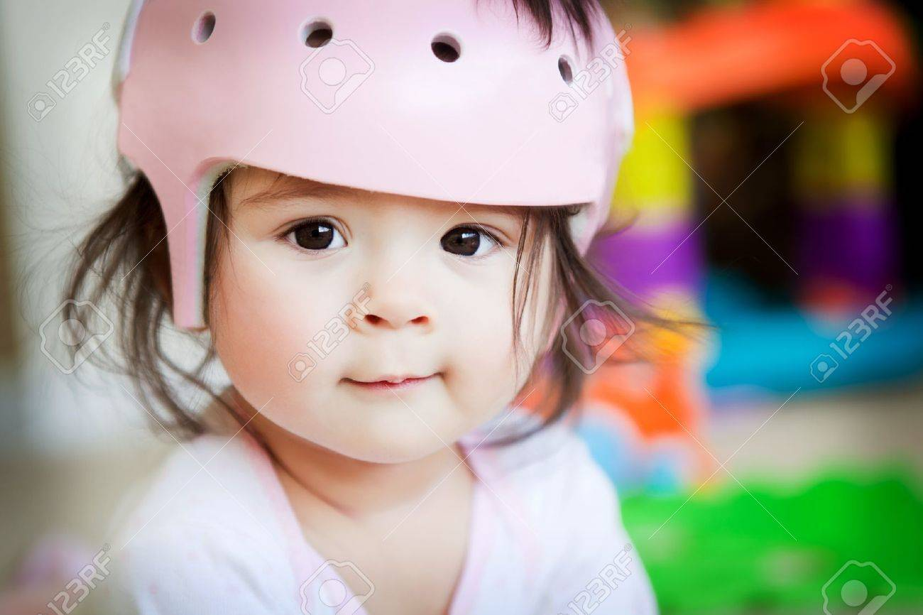 A baby girl with an orthopedic helmet smiles for the camera Stock Photo - 9407713