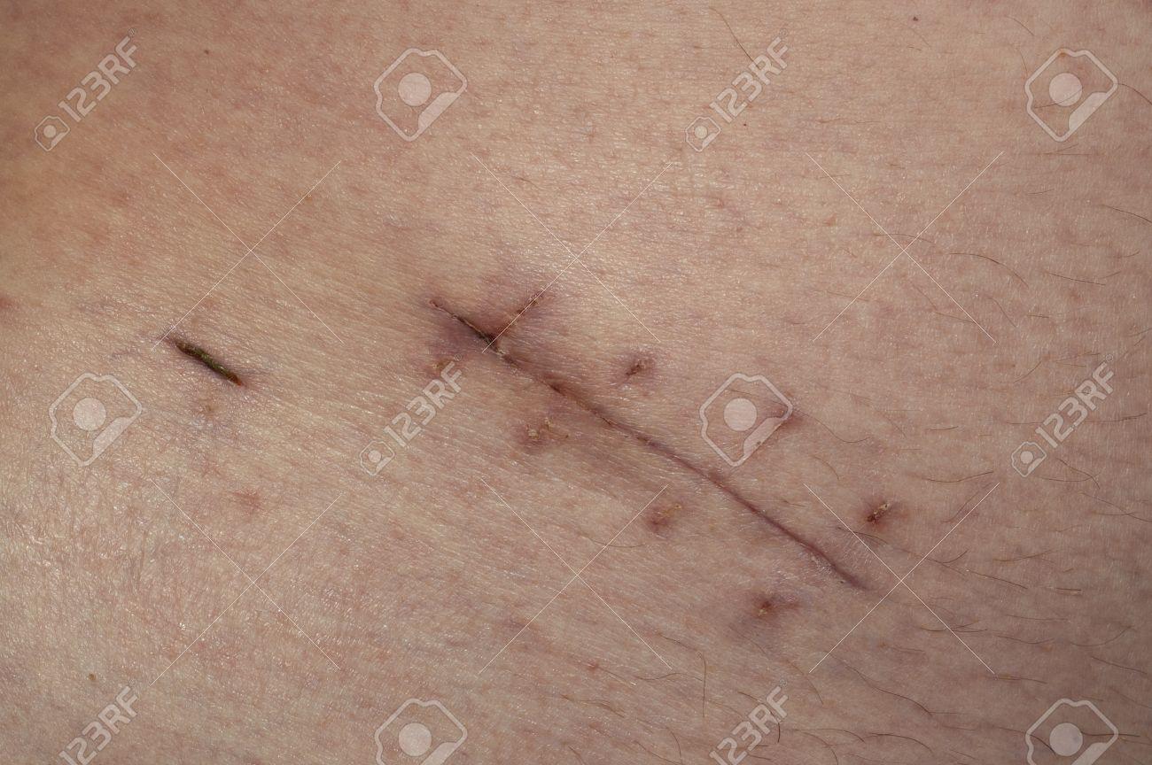 La Cicatriz De Un Tratamiento Quirúrgico De Apéndice Fotos, Retratos ...