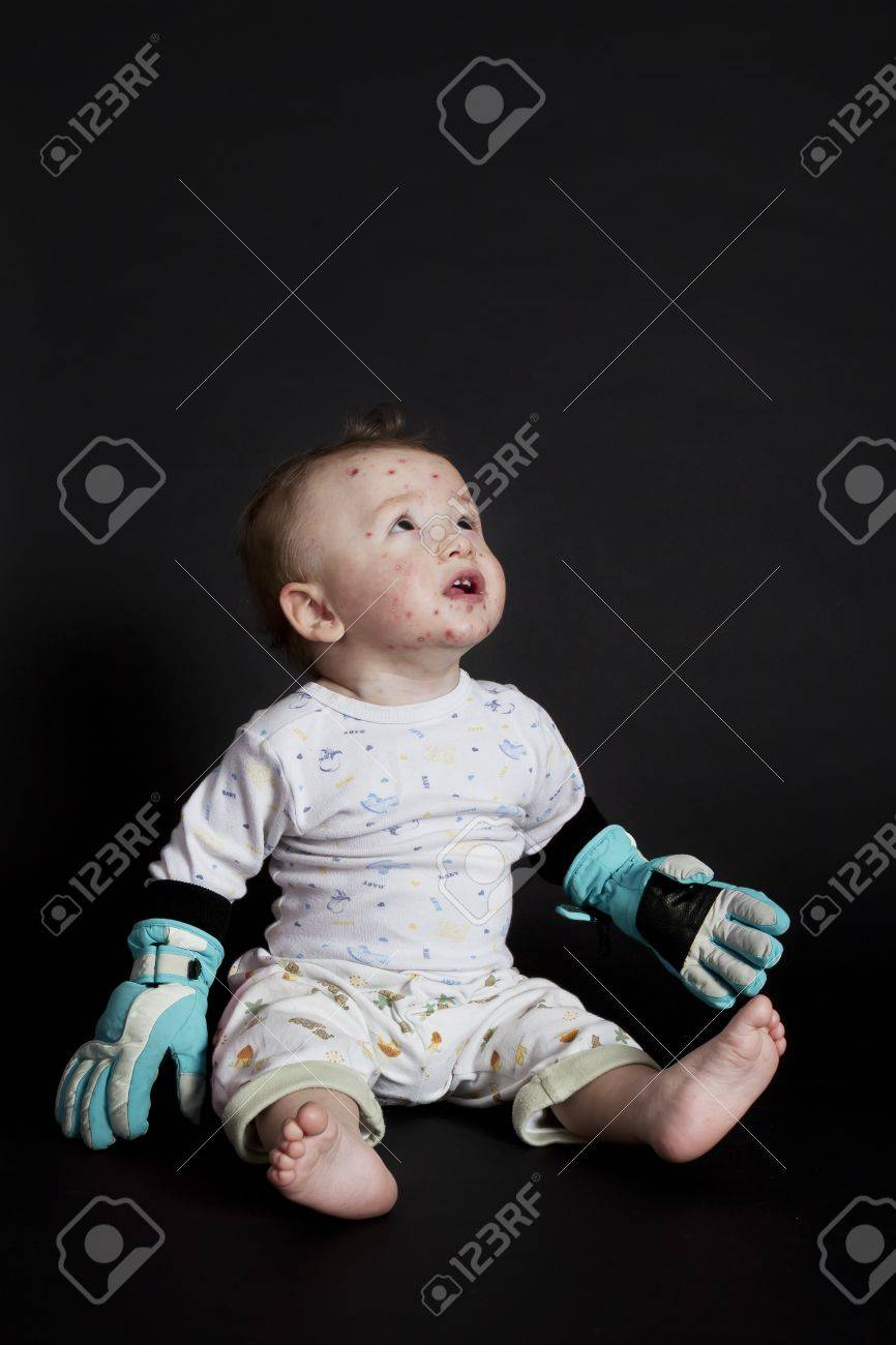 little boy with chickenpox looking for invisible medicine Stock Photo - 12770752
