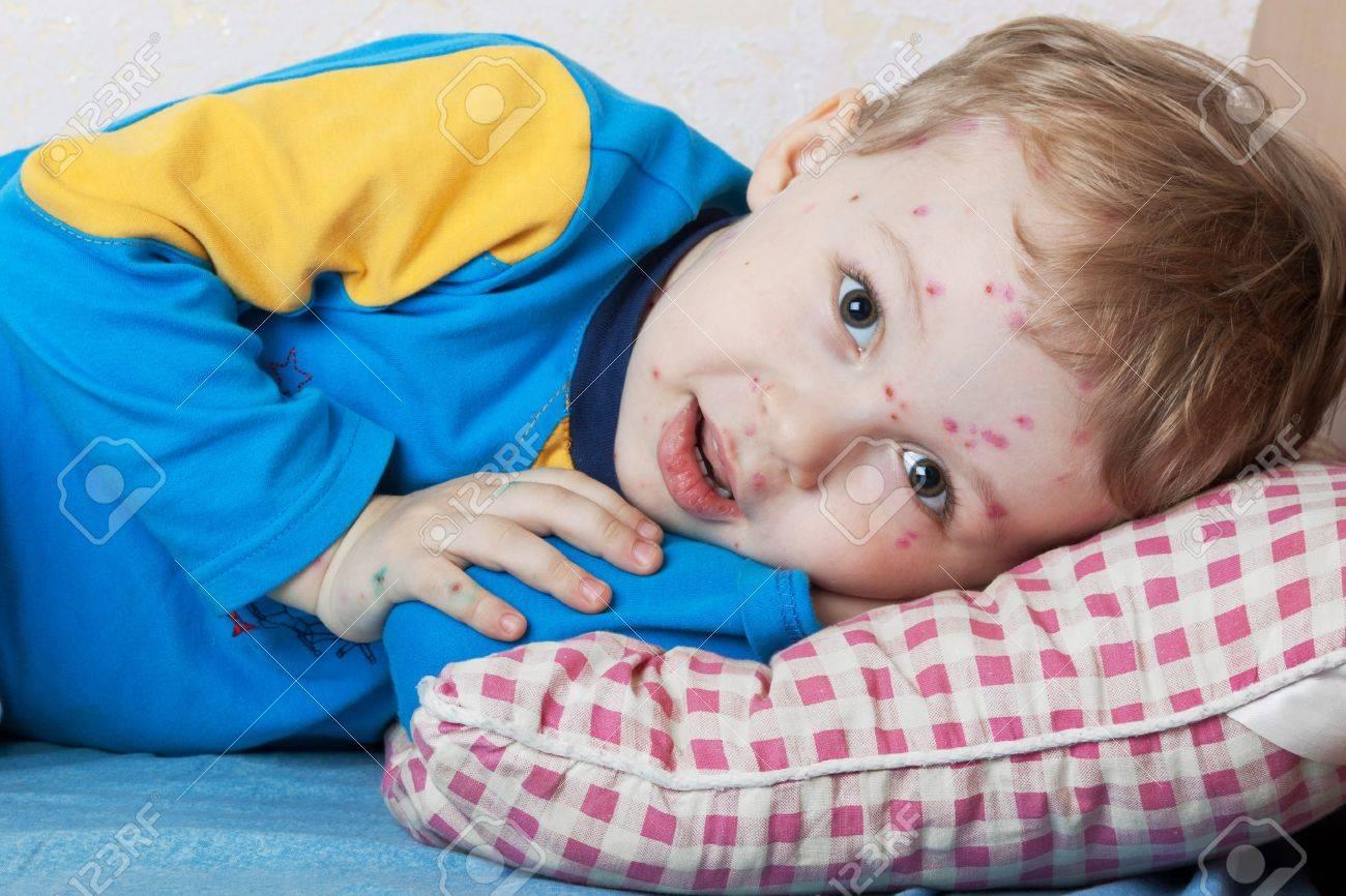 Portrait of a smiling child ailing chickenpox Standard-Bild - 12534141