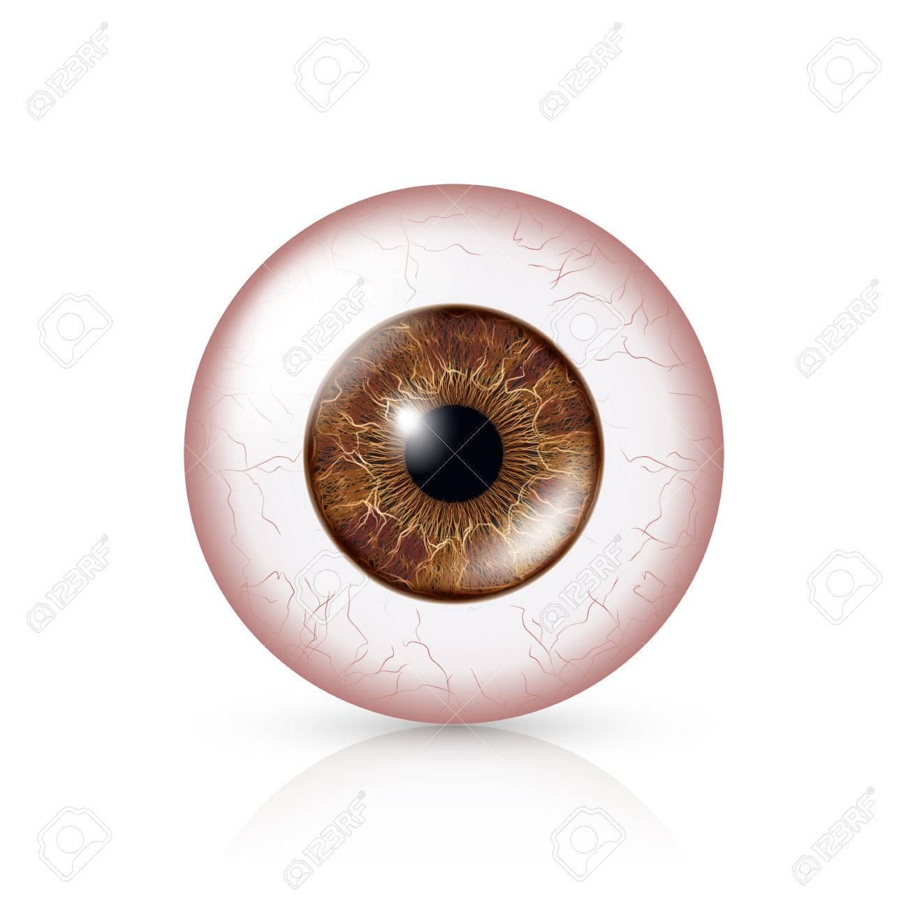 Conjuntivitis. Ojo Rojo. Globo Ocular Humano Con Conjuntivitis ...