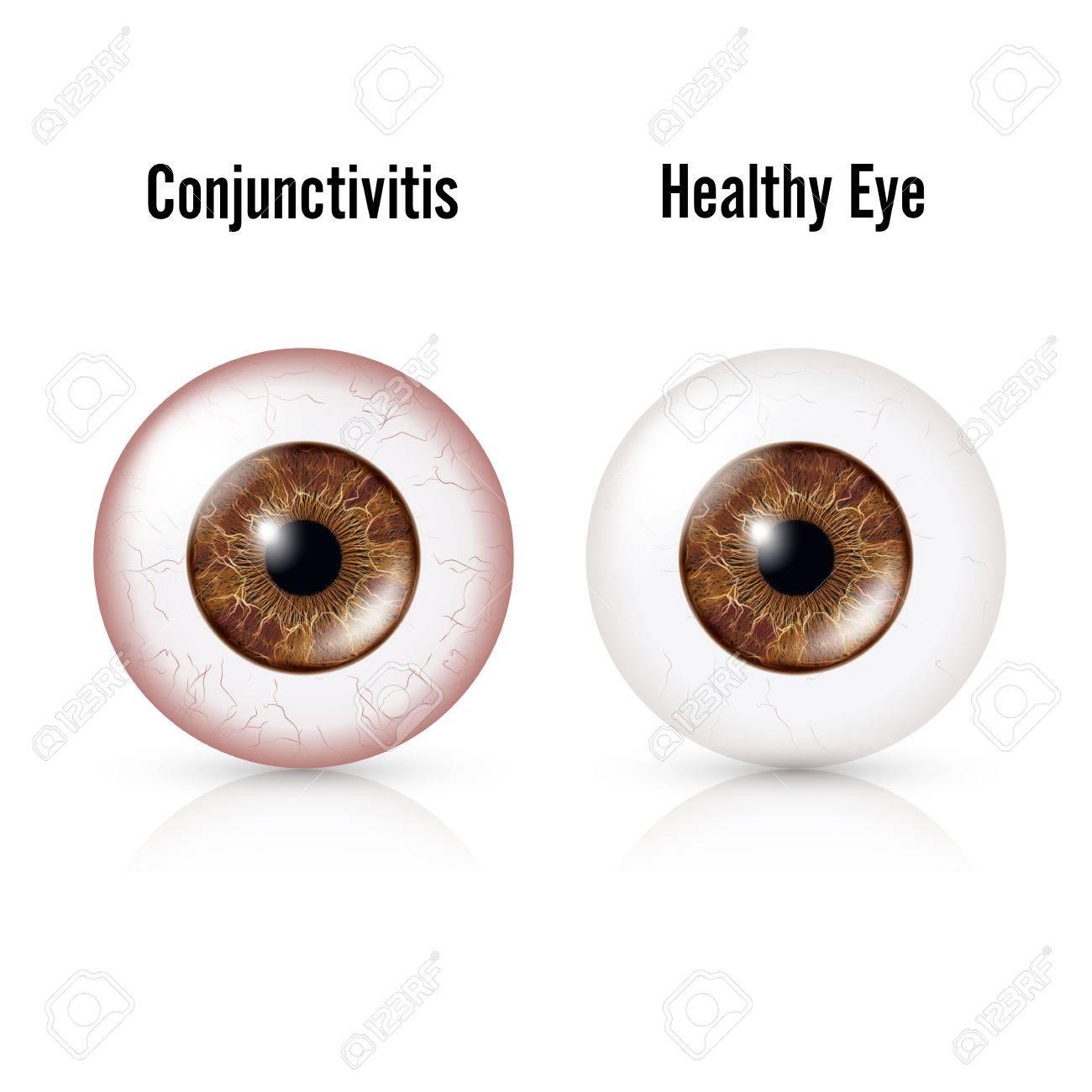 Conjuntivitis. Ojo Rojo. Ojo Sano Y Globo Ocular Con Conjuntivitis ...