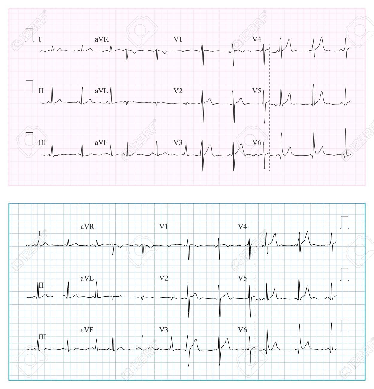 Heart cardiogram chart vector set healthy heart rhythm ischemia