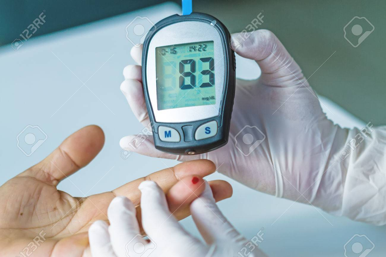 blood glucose meter, the blood sugar value is measured on a finger - 50548823