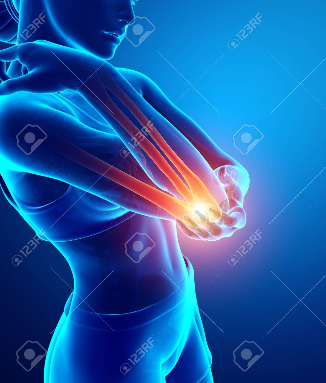 3d Illustration Of Women Feeling Elbow Pain Stock Photo, Picture And ...
