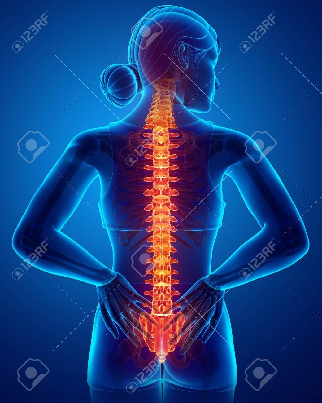 3D-Darstellung Von Frauen, Welche Die Rückenschmerzen Gefühl ...
