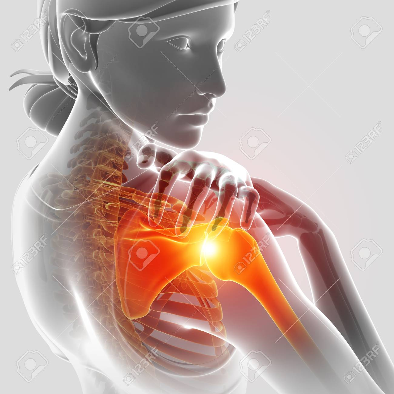 3d Illustration Of Female Feeling The Shoulder Pain Stock Photo ...