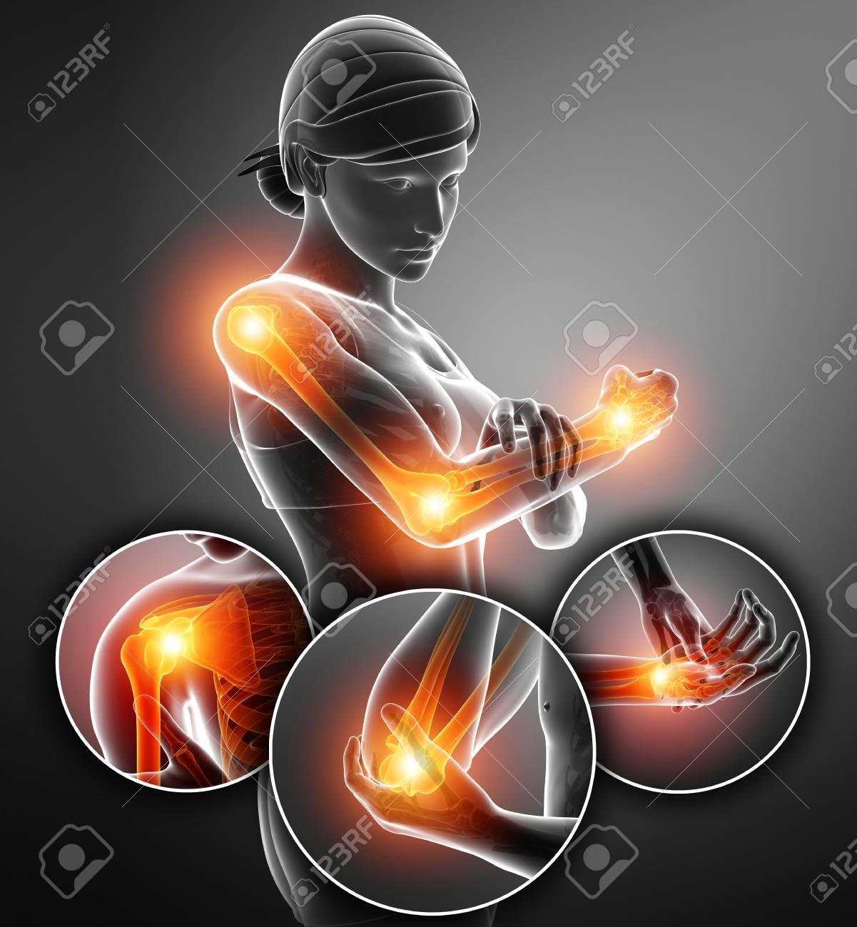 dolor articular femenino