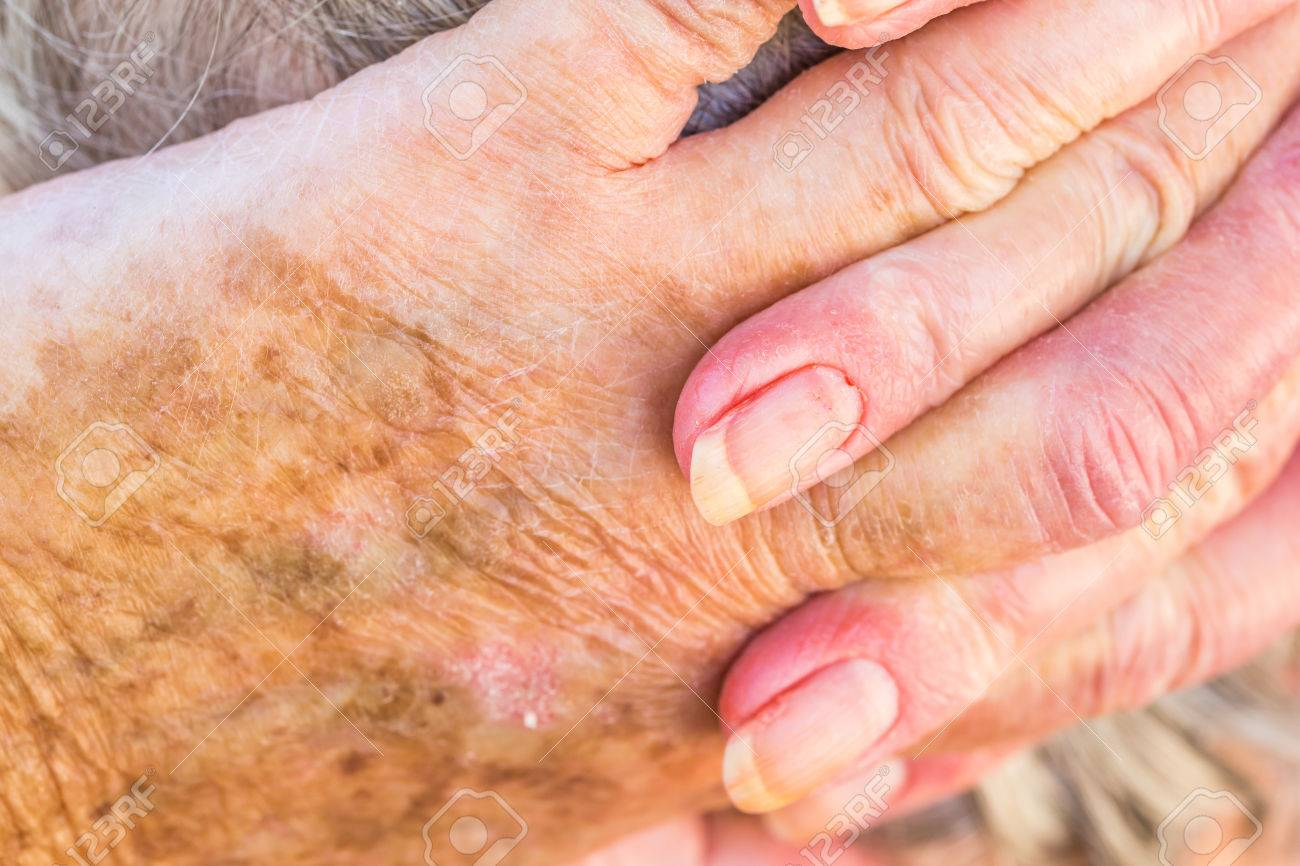 hands of an elderly woman with eczema or allergic skin problems