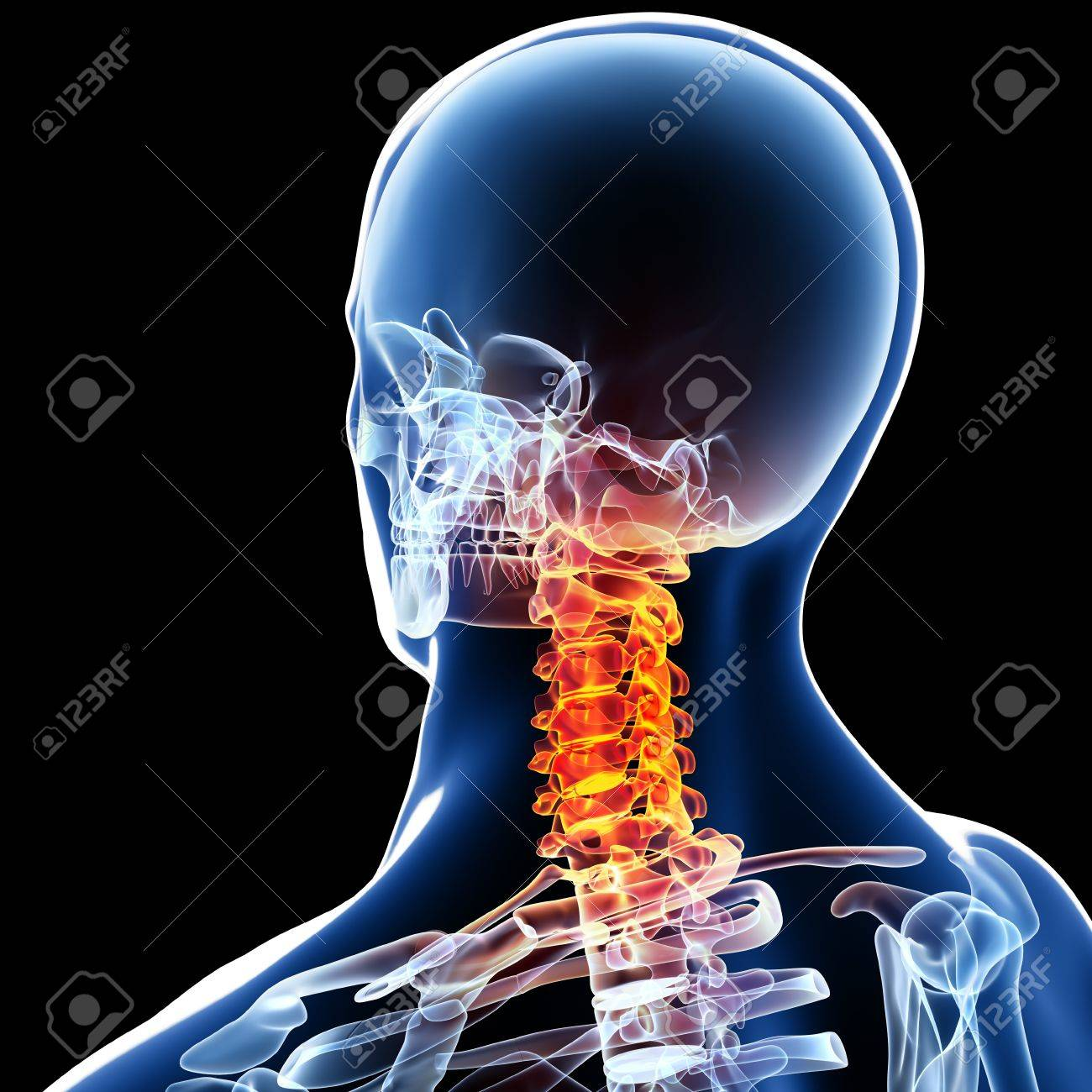 3d Rendered Medical X-ray Illustration Of Male Neck Pain Anatomy ...