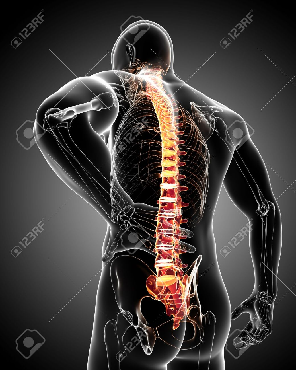 Back Pain Anatomy Stock Photo, Picture And Royalty Free Image. Image ...