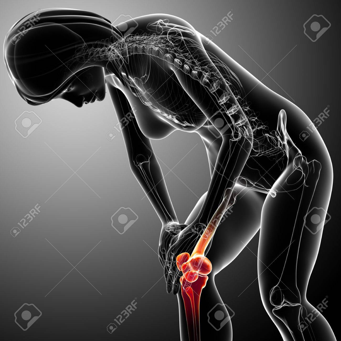 X-ray of female knee pain Stock Photo - 13757761