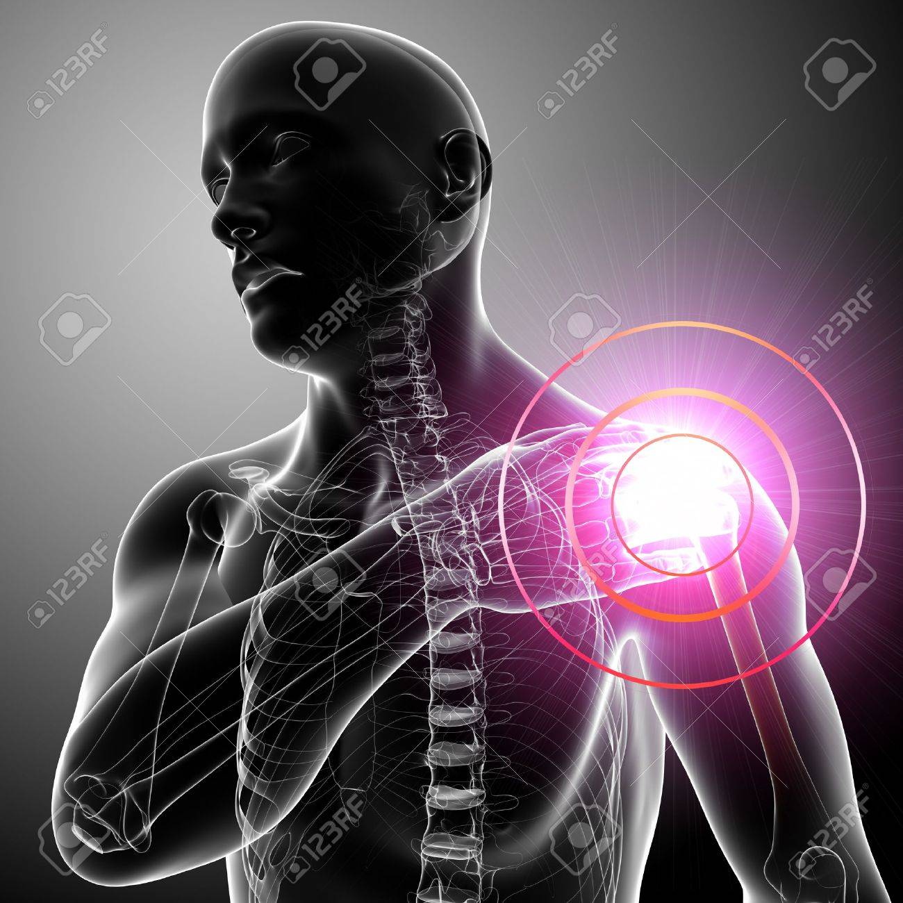 Xray Shoulder pain of male in gray Stock Photo - 13757763