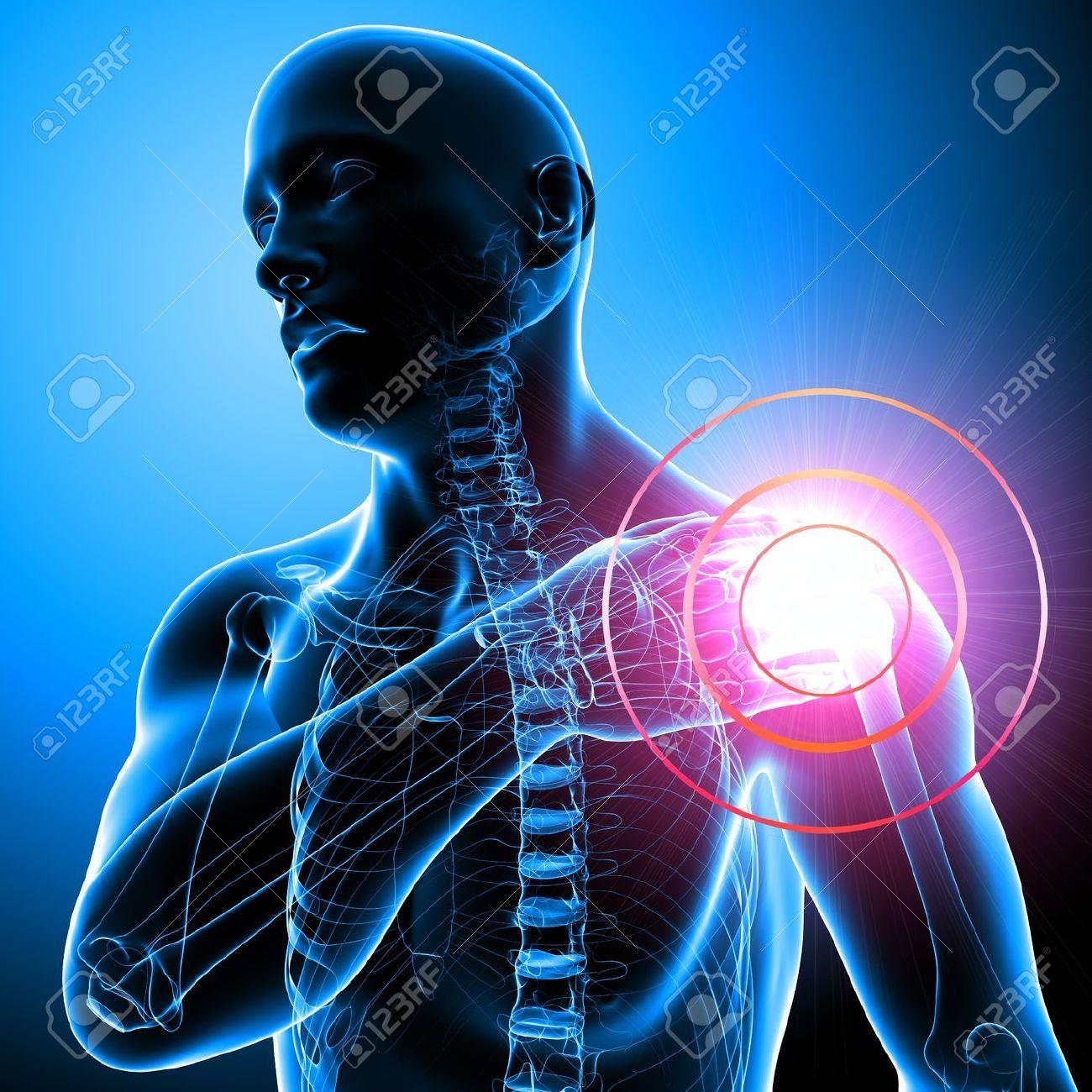 「肩の痛み」の画像検索結果