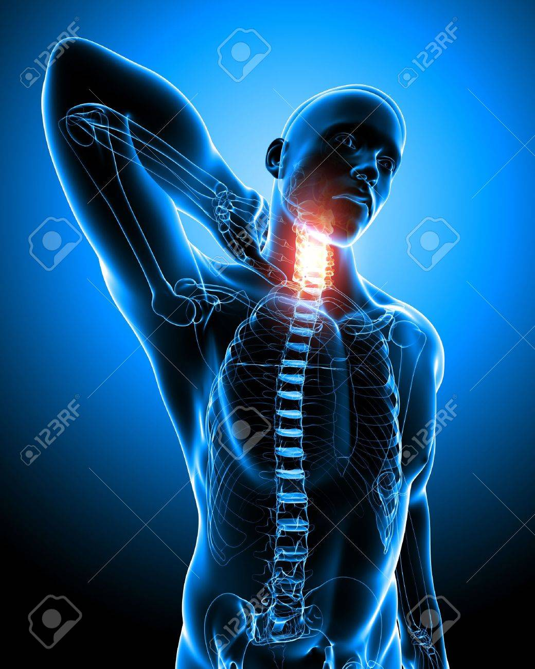 Anatomy Of Neck Pain In Blue Stock Photo, Picture And Royalty Free ...
