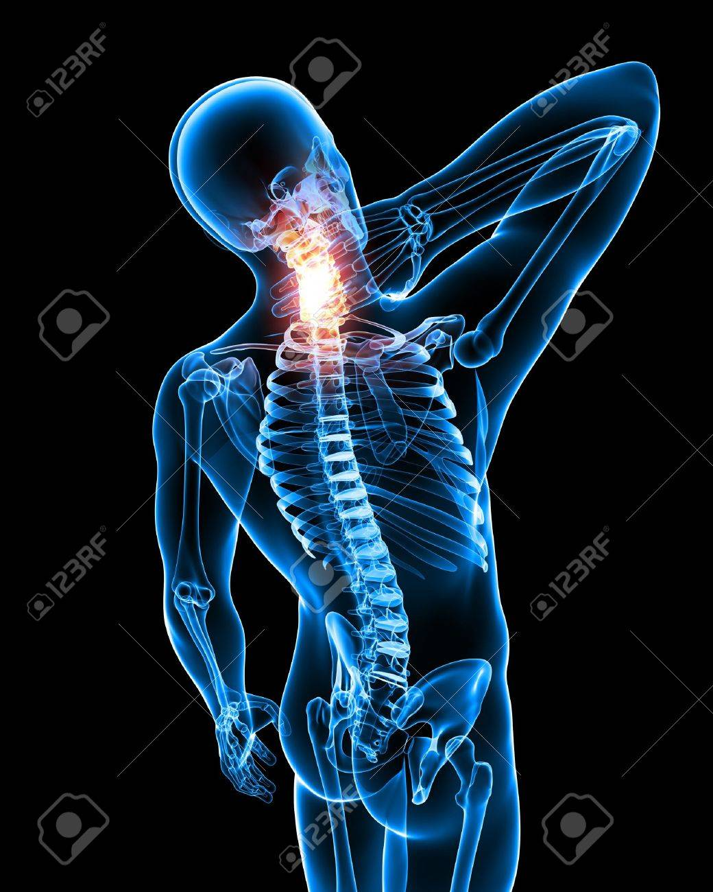 X Ray Anatomy Of Neck Pain In Black Stock Photo Picture And Royalty
