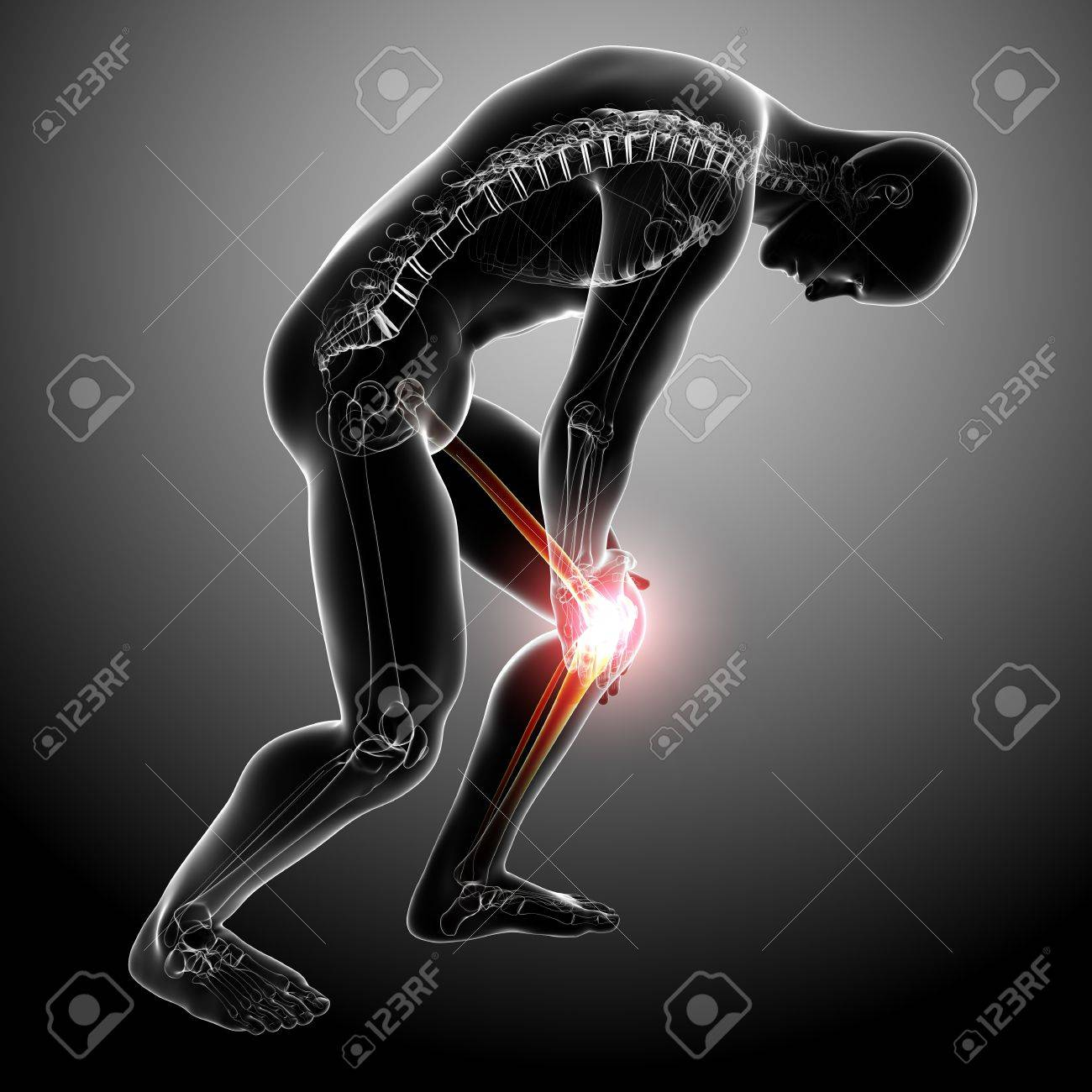 X Ray Anatomy Of Male Knee Pain Stock Photo Picture And Royalty