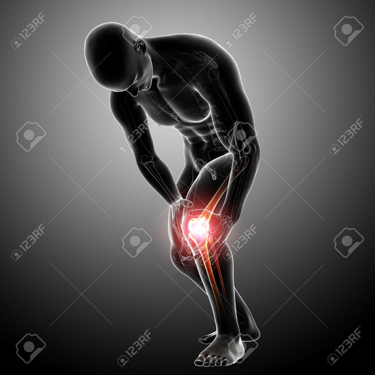 X-ray Anatomy Of Knee Pain Gray Stock Photo, Picture And Royalty ...