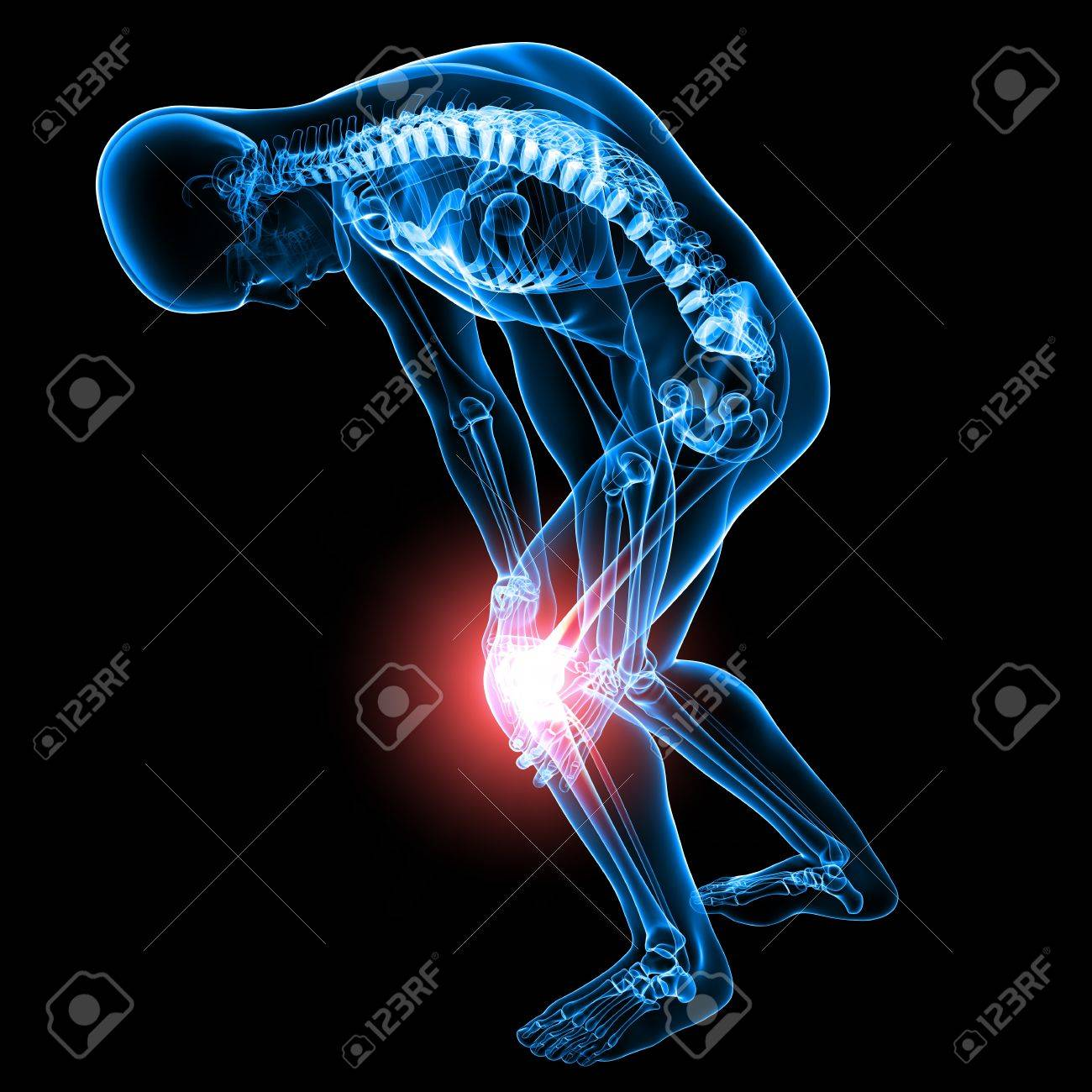 X-ray Anatomy Of Male Knee Pain Stock Photo, Picture And Royalty ...