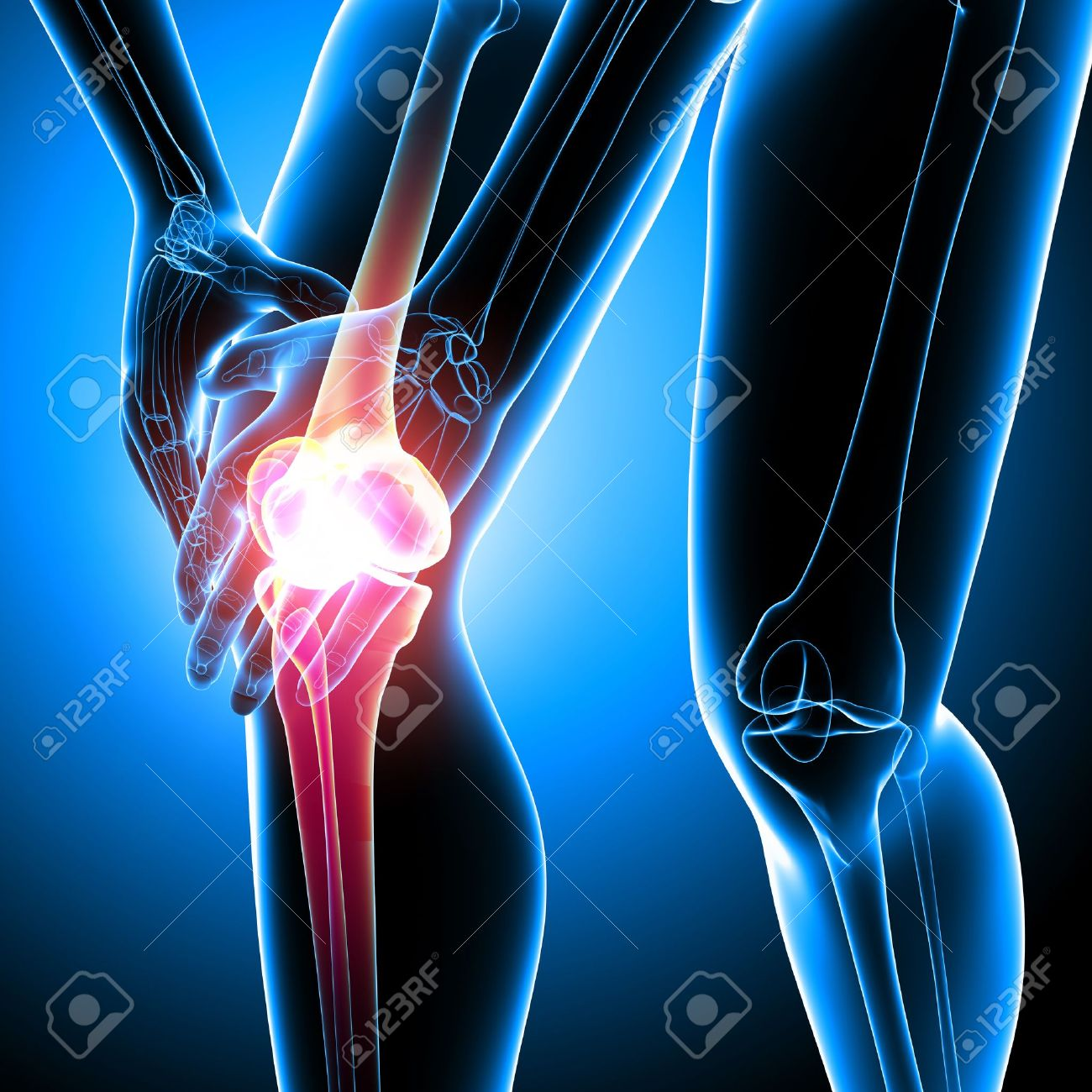 Anatomy Of Female Knee Pain Stock Photo, Picture And Royalty Free ...