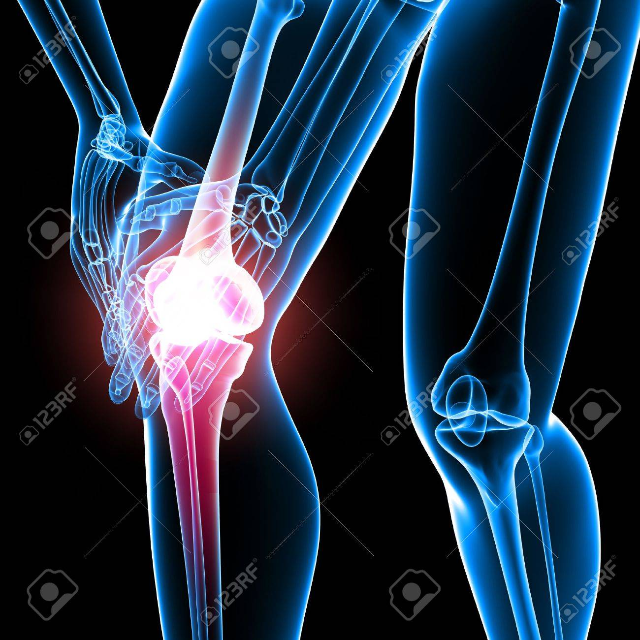 X-ray Anatomy Of Female Knee Pain Stock Photo, Picture And Royalty ...