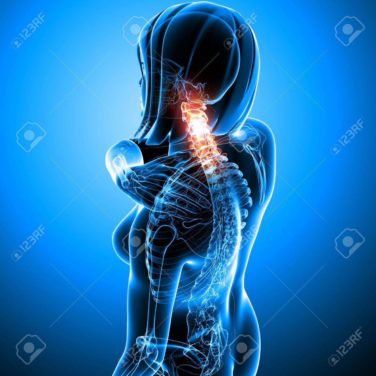 Anatomy of female acneck pain Stock Photo - 13757917