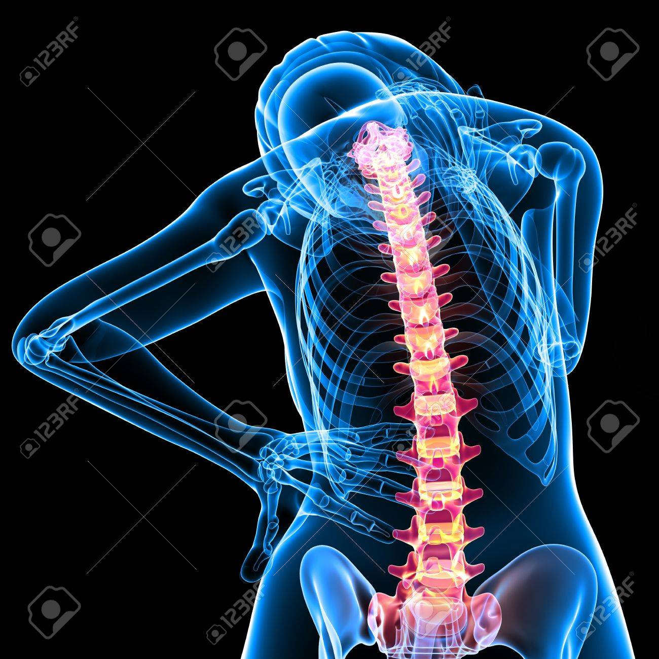 X-ray Anatomy Of Female Back Pain Stock Photo, Picture And Royalty ...