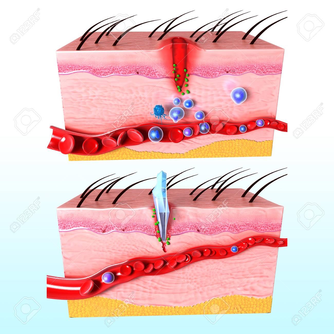 Anatomía Del Sistema De Respuesta Inmune De La Piel Humana Fotos ...