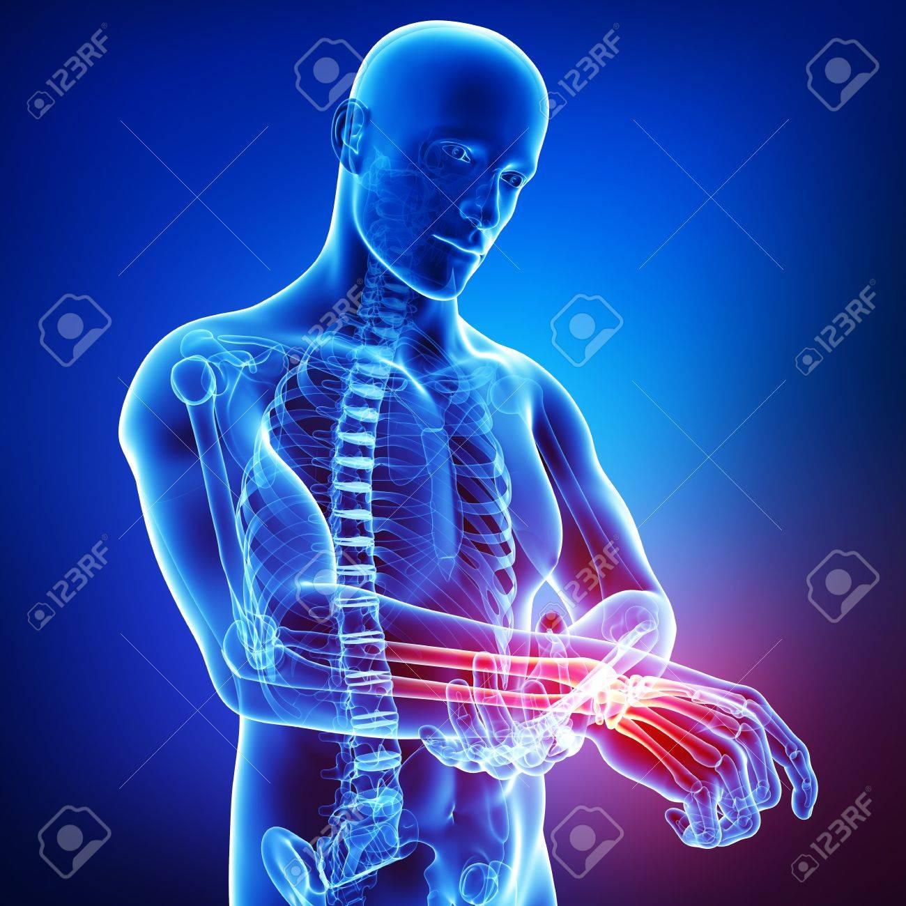 3d art illustration of male hand pain Stock Photo - 15482593