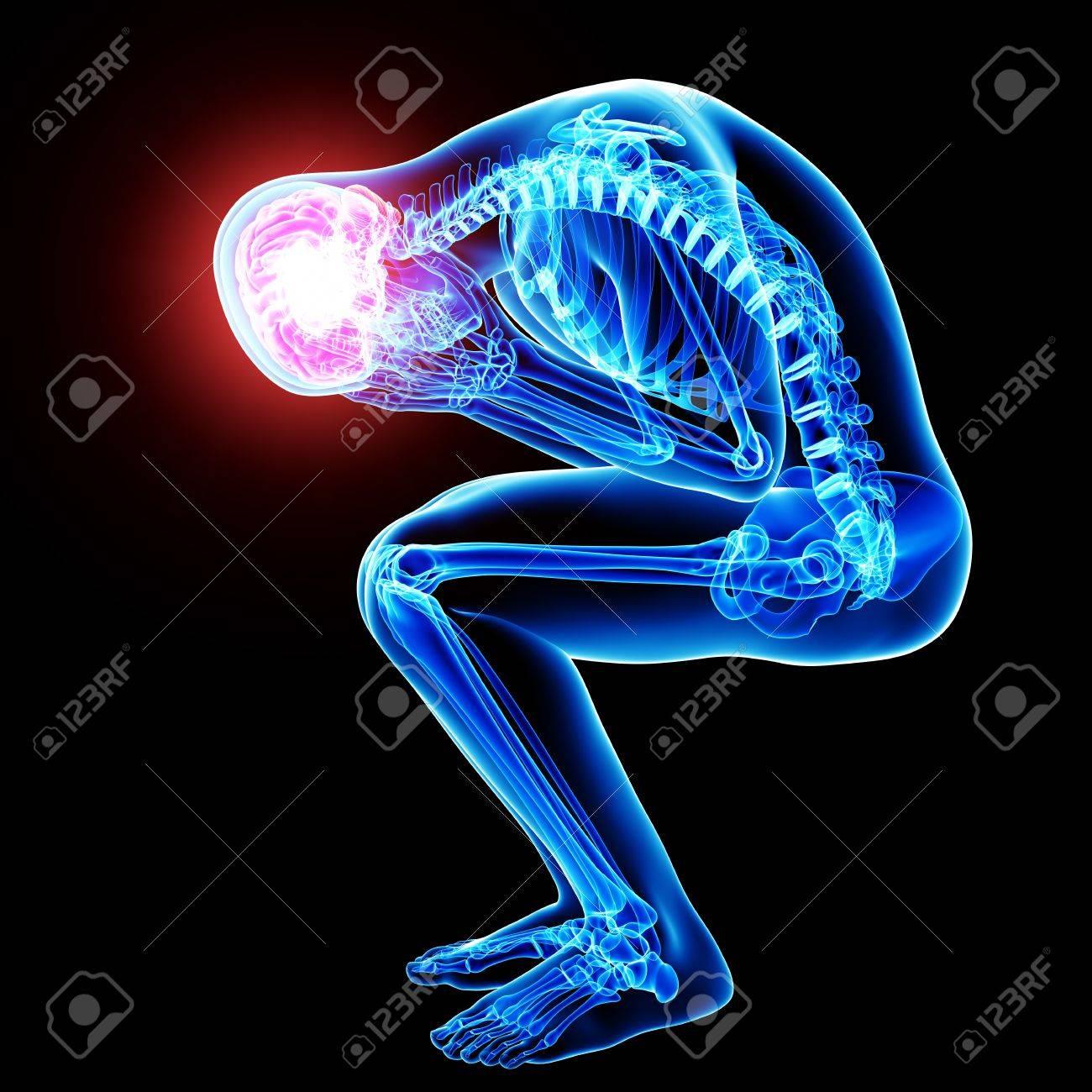 brain pain in black Stock Photo - 15482587