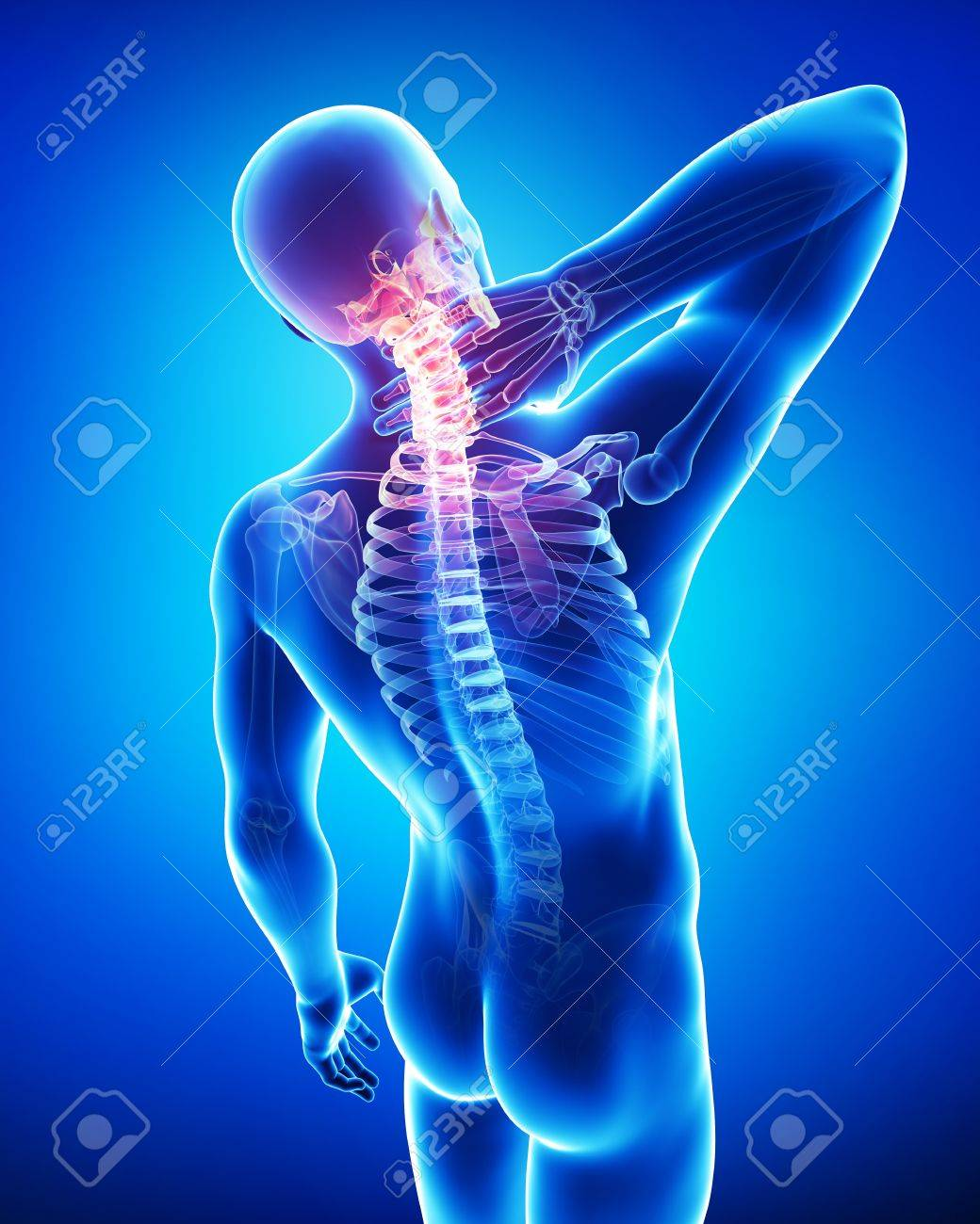 Anatomy Of Neck Pain Stock Photo, Picture And Royalty Free Image ...