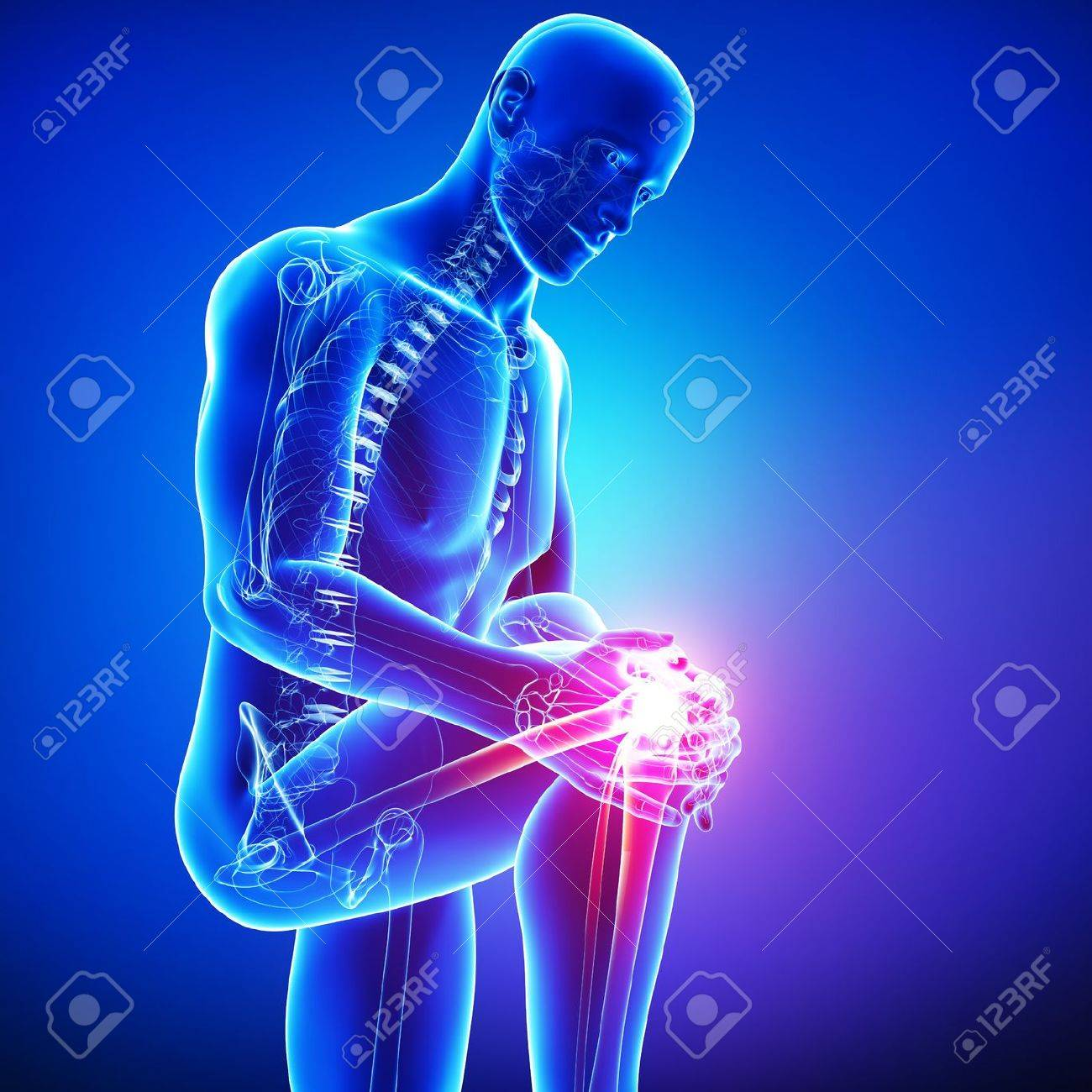 Anatomy Of Male Knee Pain In Blue Stock Photo, Picture And Royalty ...