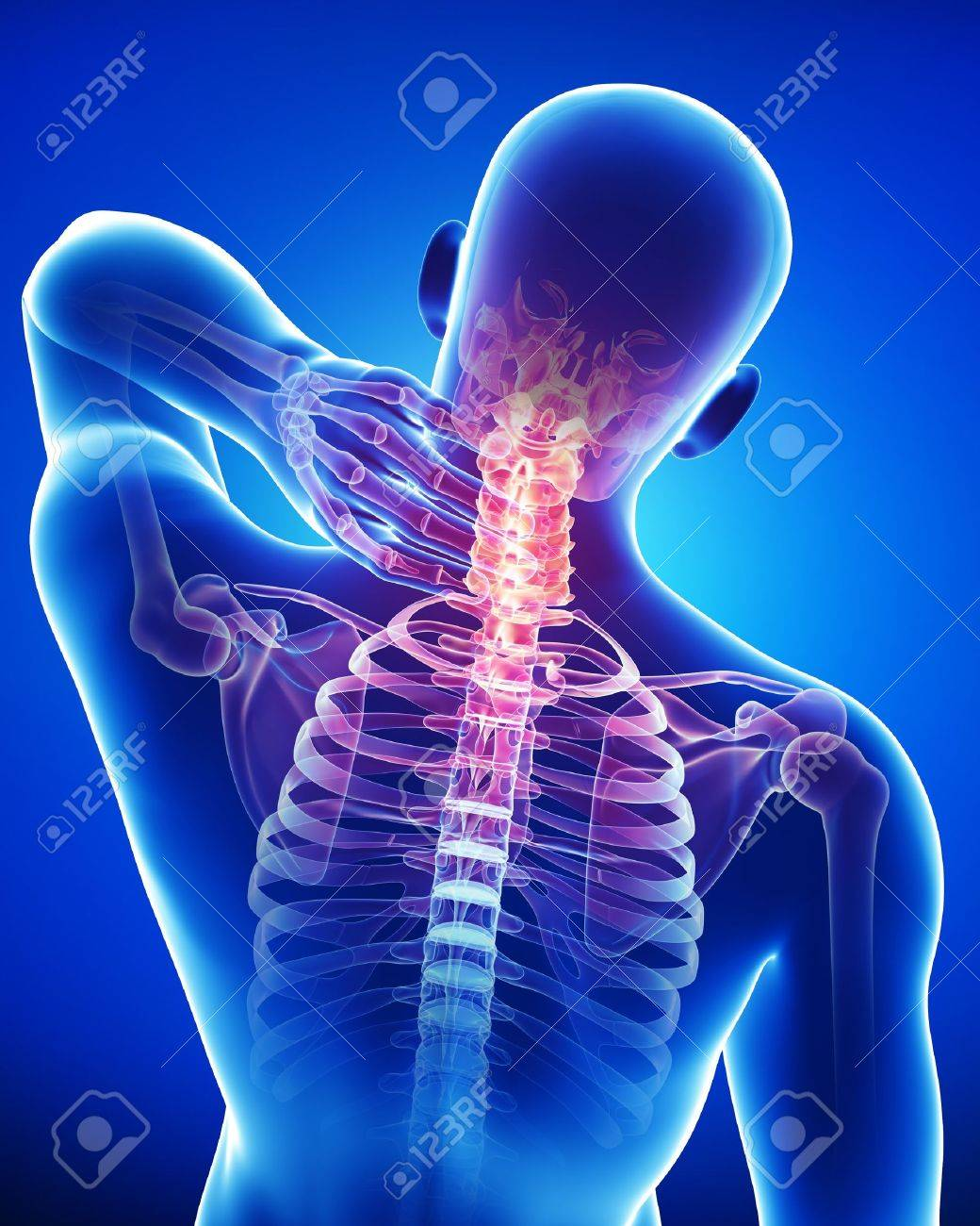 Male Neck Pain Stock Photo Picture And Royalty Free Image Image