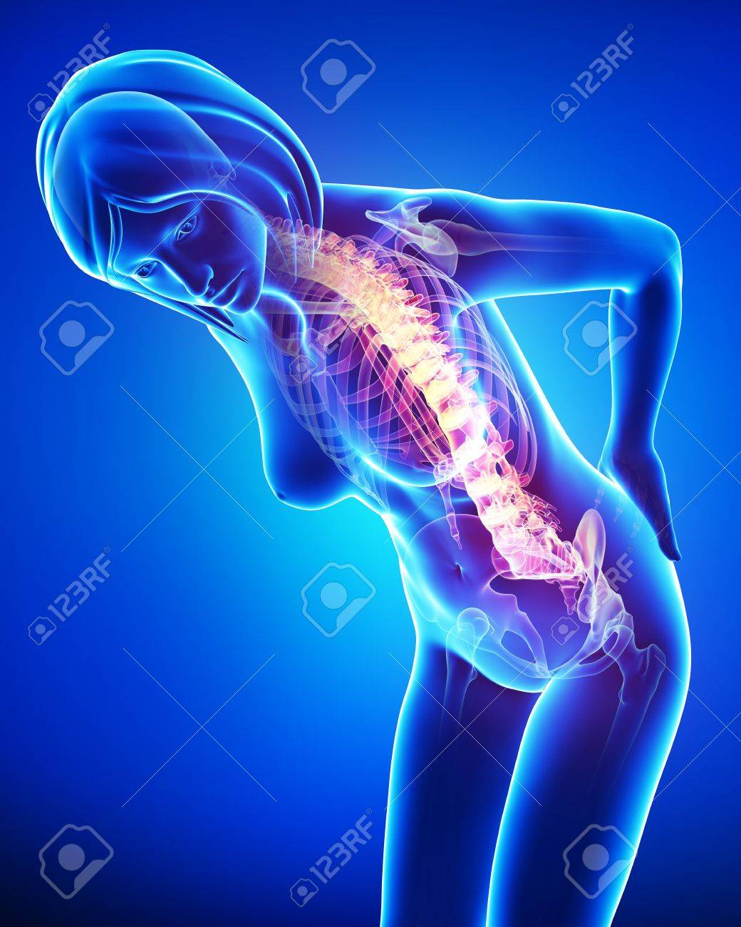 female back pain in blue Stock Photo - 15482484