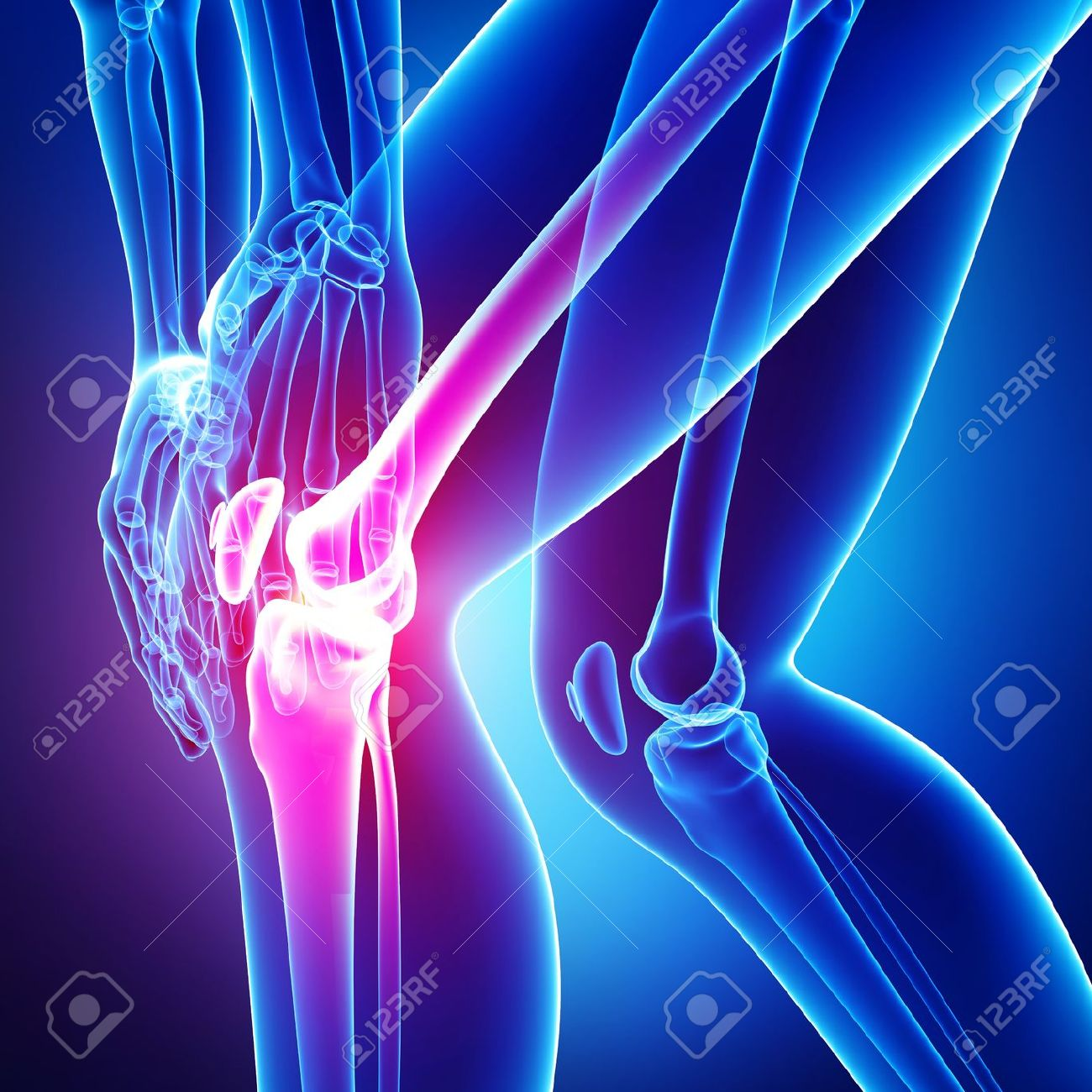 Anatomy Of Knee Pain In Blue Stock Photo, Picture And Royalty Free ...
